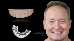 The digital wax-up was printed using a 3D printer (Asiga) and a PVS key was fabricated to facilitate an in-mouth mock-up. This was assessed and photographic records were taken to communicated desired changes to the ceramist.
