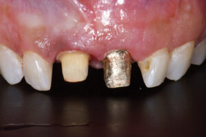 Removal of exiting restorations and clinical evaluation of current abutment and remaining tooth structure.