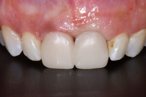 Initial transitional restorations to improve soft tissue contours.