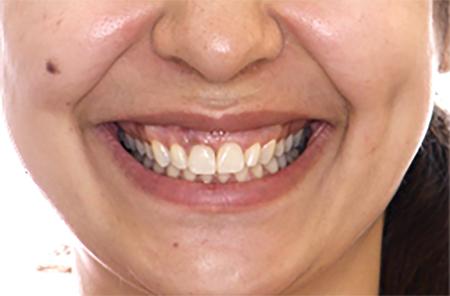 Post treatment photograph. Spontaneous smile.