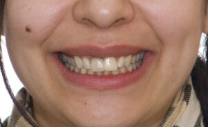 nitial situation. Facial photo (cropped for privacy) showing disharmony between teeth 1.1, 2.1 and the rest of the smile. Inadequate orientation of the long axis, asymmetric shape, unideal size and proportions