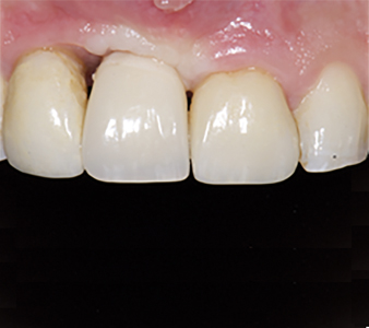 Bone deficiency on between 11 implant temporary crown and tooth 12. Attachment loss on mesial of 12.