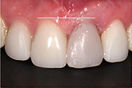 New zenith on dental implant site.
