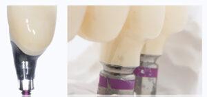Custom titanium base and a stock titanium base with zirconia emergence profile.