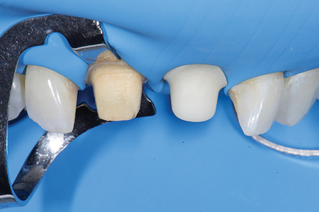 Rubber dam isolation, discrepancy in stump shades of tooth and final implant abutment.
