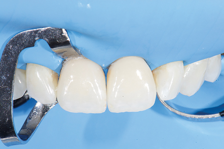 . Final cementation of 11 and 21 and direct composite on mesial of 22