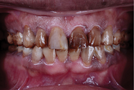. Retracted view of the intra-oral situation. 1.1 has a bonded composite resin on the facial to observe if the enamel will bond predictably.