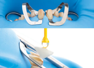 Delivery of the two central incisors. Note that only those two teeth were isolated completely to start, making the preparation for adhesion and cleanup of cement easier without worrying about the adjacent teeth.