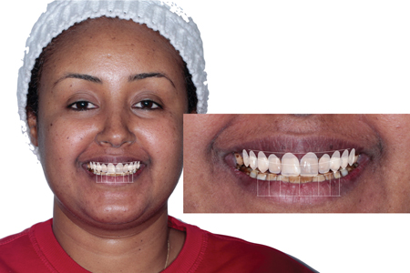 Ideal proportions template overlaid on the post-orthodontic position using Keynote software.