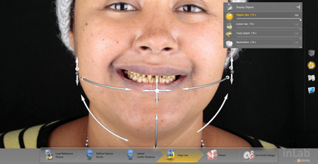 Scaling the digital model into the patients anatomical features
