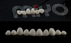 Miyo liquid porcelain system staining and glazing, creating natural effects without needing to cut back the restorations.