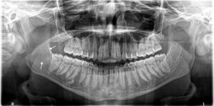 Panorex taken three months prior to presentation to the Oral and Maxillofacial Surgery Department at the Montreal General Hospital demonstrating a subtle radiolucency of the right mandibular ramus.