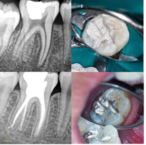 Case of Dr. Viraj Vora. A. Lower right molar with pulp necrosis. B. Post-operative amalgam restoration. Three year C. radiographic and D. clinical follow-up.