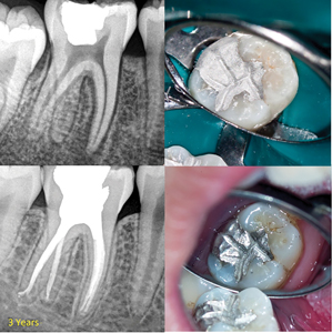 Case of Dr. Dale Jung. A. Post-operative radiograph. B. Primary occlusal anatomy is carved. C. Minimal occlusal contacts are on the restoration for the short term. D.&E. and F. Patient returns for a 2-week bite check: Occlusion is adjusted to provide ideal centric occlusal contacts on functional cusps and minimal or no contact on nonfunctional cusps in excursive movements.