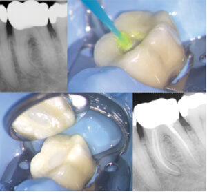 Case of Dr. Bobby Nadeau. A. Lower molar with Irreversible Pulpitis. Following root canal treatment, the Zirconia crown cavosurface is roughened using a diamond bur and B. hydrofluoric acid. C. The access cavity is repaired using a light-cure bonding agent and bonded composite resin. D. Post-operative radiograph.