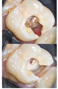 Case of Dr. Viraj Vora. A. Gingival tissue overgrowth obstructing the gingival margin B. is removed using System B (Kerr Dental, California, USA) cauterization.