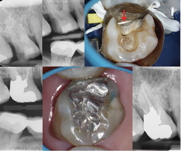 Case of Dr. Dale Jung. A. & B. Upper first molar with deep distal caries and pulp necrosis. C. Greater Curve Wide matrix supported by PTFE and wedge. The distal root concavity is closed with PTFE (red arrow). D. Post-operative bitewing. E. & F. 1 year follow-up