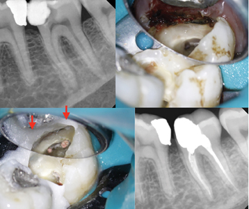 Case of Dr. Bobby Nadeau. A. Lower second molar with deep caries and pulp necrosis. B. Gingivectomy is completed. C. Following root canal treatment, a custom resin matrix (red arrows) using Opaldam (Ultradent, Utah, USA) is used to placed the amalgam core. D. Post-operative radiograph