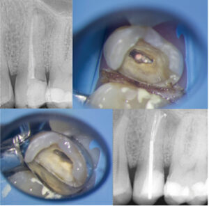 Case of Dr. Bobby Nadeau. A. Pre-operative radiograph of an upper second premolar with lack of ferrule on the distal aspect. B., C. & D. Following root canal retreatment, the tooth is restored using a metal post and composite resin core build-up.