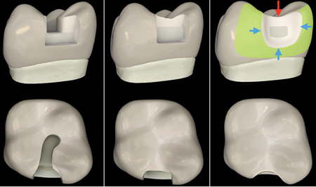 """Courtesy of Dr. David Clark. A. Classic G.V. Black """"extension for prevention"""" preparation design. B. Classic class II slot preparation for composite resin. C. Clark Class II preparation design for Bioclear restoration: aggressive radius wall on the occlusal (red arrow), rounded external line angles via radius wall (blue arrows) and infinity edge margins with maximized enamel rod engagement with large area of """"additive dentistry"""" (green area)."""