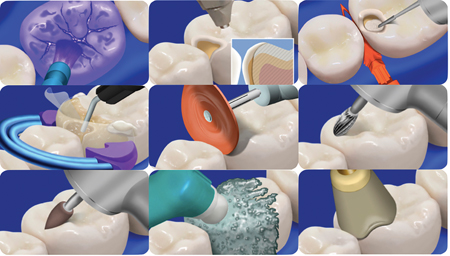 Courtesy of Dr. David Clark. Steps involved in the Biolcear Method. A. Biofilm disclosing solution. B. Biofilm removal using air polishing. C. Pre-wedging and cavity preparation refinement. D. Use of a clear, tooth form sectional matrix, tooth form wedge and separation ring. Injection overloading using heated composite resin. Finishing and polishing using E. finishing discs, F. carbide bur, G. finishing point, H. polishing paste and I. polishing cup.