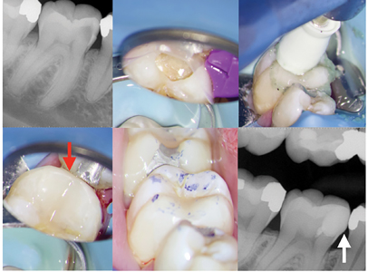 Case of Dr. Bobby Nadeau. A. Lower first molar with reversible pulpitis due to deep caries. B. After caries excavation, bleeding from two small pulp exposures was controlled. Direct pulp cap was completed and the tooth restored permanently using the Bioclear Method (Tacoma, USA) . Adaptation of clear Bioclear matrix, wedge and separation ring. C. Once placed, the composite resin restoration is polished using a polishing paste. E., F. & G. Adequate mesial contour (white arrow), interproximal (red arrow) and occlusal contacts are re-established.
