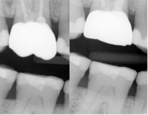 Case of Dr. Bobby Nadeau. A. Upper first molar with persistent pain following root canal treatment and placement of a Zirconia crown with excessive occlusal anatomy. B. After completion of endodontic retreatment, the crown is adjusted to remove the steep occlusal inclines.