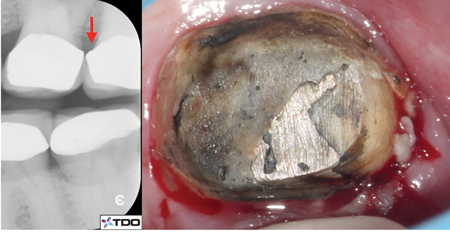 24A. Over-contoured crown margin (red arrow). B. Severe gingival inflammation is seen after removal of the defective crown.