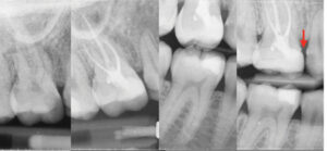 Case of Dr. Dale Jung. A. Upper first molar with irreversible pulpitis. B. & C. Post-operative radiographs demonstrating conservative mesialized caries leveraged access cavity and immediate placement of a direct permanent restoration. D. At follow-up, the tooth has been restored with an indirect restoration which has an open margin (red arrow).
