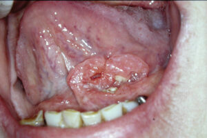 Squamous cell carcinoma of the left anterior floor of mouth.