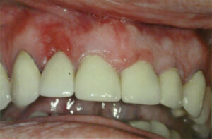 Longstanding erythematous attached gingiva on labial aspect of tooth #1-2. The area of erythema was excised, and the tissue sent to pathology.