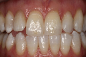Normal length maxillary central incisors – expected appearance.