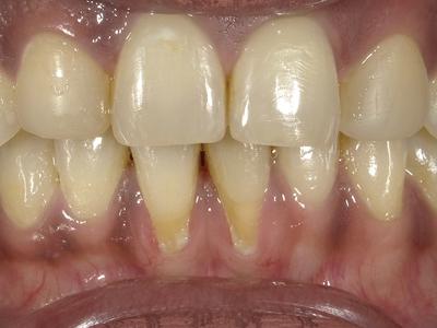 Mandibular anteriors with labial gingival recession.