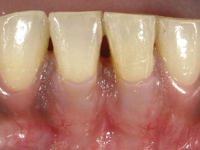Mandibular anteriors with gingival restorative rectification.
