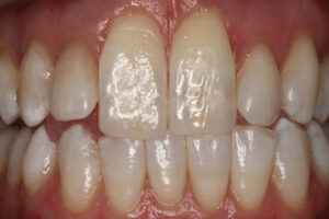 Maxillary incisors apparent length increased by 30% - very unnatural and unesthetic.
