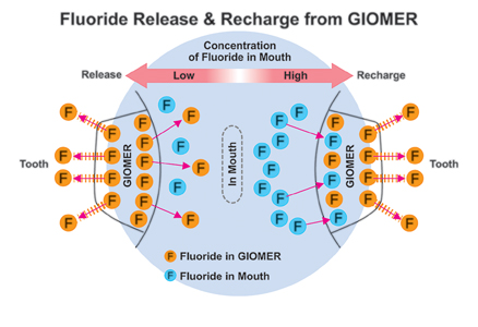 Giomers continue to release fluoride because their fluoride content can be recharged with fluoride toothpastes, rinses and varnishes.