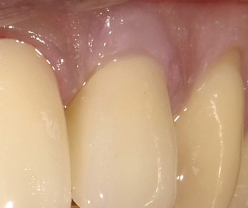 Maxillary left lateral with mesial restoration and gingival restorative rectification.