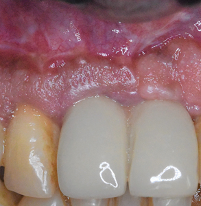 Clinical appearance of peri-implant tissues at 6 months post-operative showing signs of health and lack of inflammation.
