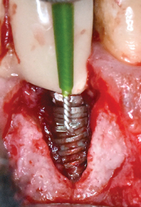 """Titanium brush used systematically for implant surface decontamination; the brush is used from apical to coronal aspect of the exposed implant surface. Note the """"smoother"""" appearance of the implant surface after titanium brush treatment."""