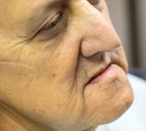 Pre-operative facial (left) and B.intra-oral (right) images of patient.