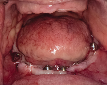 Post-operative intraoral view.