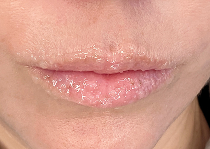 Exfoliation (lip scrub) to gently cleanse the lips, while enzymes promote skin renewal.