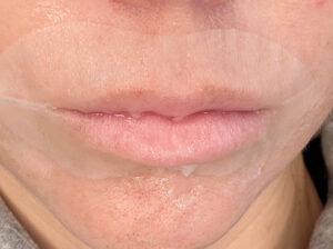Hydration (lip mask – second skin) to soothe and deeply hydrate the lips, restoring vital moisture balance.