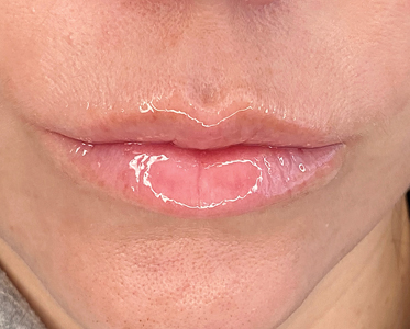 Protect (lip balm with SPF) to nourish, replenish and protect the lips.