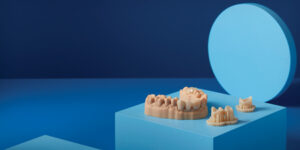Provisional crowns–Temporary CB resin (Courtesy of Formlabs Dental).