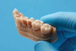Permanent single unit restorations (Courtesy of Formlabs Dental).