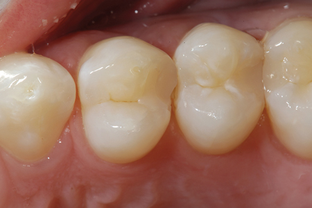 A preoperative view of tooth 24 with a fractured marginal ridge in the DO composite. The patient has been impacting food in this space since breaking the restoration.