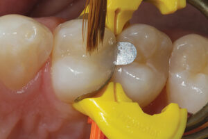 A sable artists' brush is used to remove any excess material and to ensure complete coverage of the cavity margins.