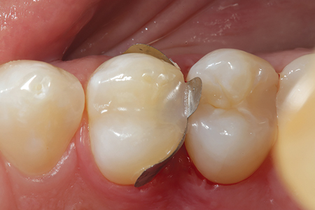 An occlusal view Estelite Bulk Fill Flowable: Tokuyama Dental after light curing and matrix removal. Note the precise volume of restorative placed in order to limit the post-op contouring.
