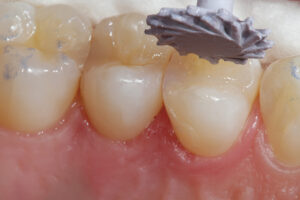 An A.S.A.P: Clinical Research Dental rubber abrasive pre-polisher is used for the initial polishing.